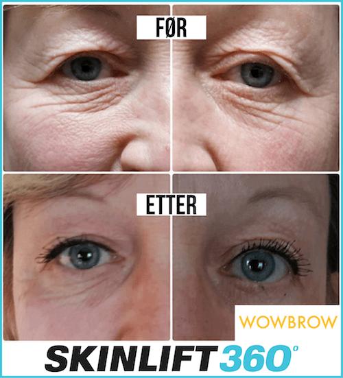 SKINLIFT 360 Endelig i Norge! WowBrow er stolte av å presentere en revolusjon i rynkefjerning og hudløft.